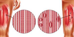 Les points gâchettes s'accumulent dans les fascias des fibres musculaires.